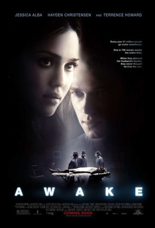 Film Awake - Anestesia cosciente